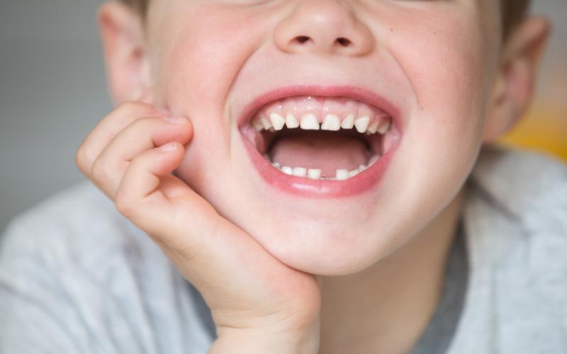 Devitalizzare denti da latte