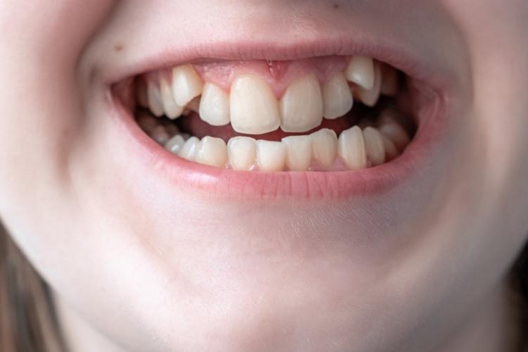 Gnatologia dentale
